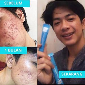 testimoni luxthione collagen